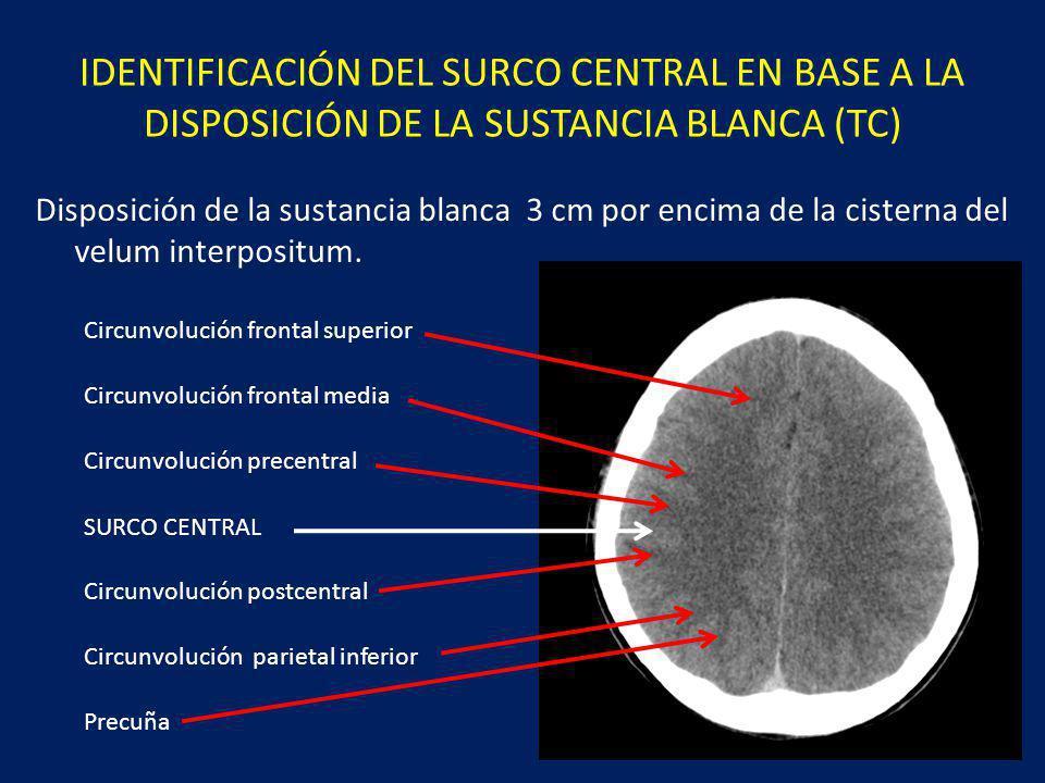 IDENTIFICACIÓN DEL SURCO CENTRAL EN BASE A LA DISPOSICIÓN DE LA SUSTANCIA BLANCA (TC)