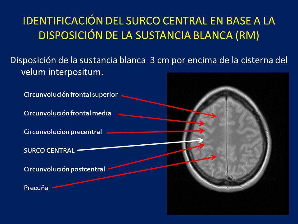 IDENTIFICACIÓN DEL SURCO CENTRAL EN BASE A LA DISPOSICIÓN DE LA SUSTANCIA BLANCA (RM)