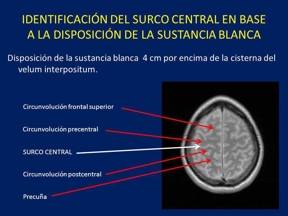 IDENTIFICACIÓN DEL SURCO CENTRAL EN BASE A LA DISPOSICIÓN DE LA SUSTANCIA BLANCA