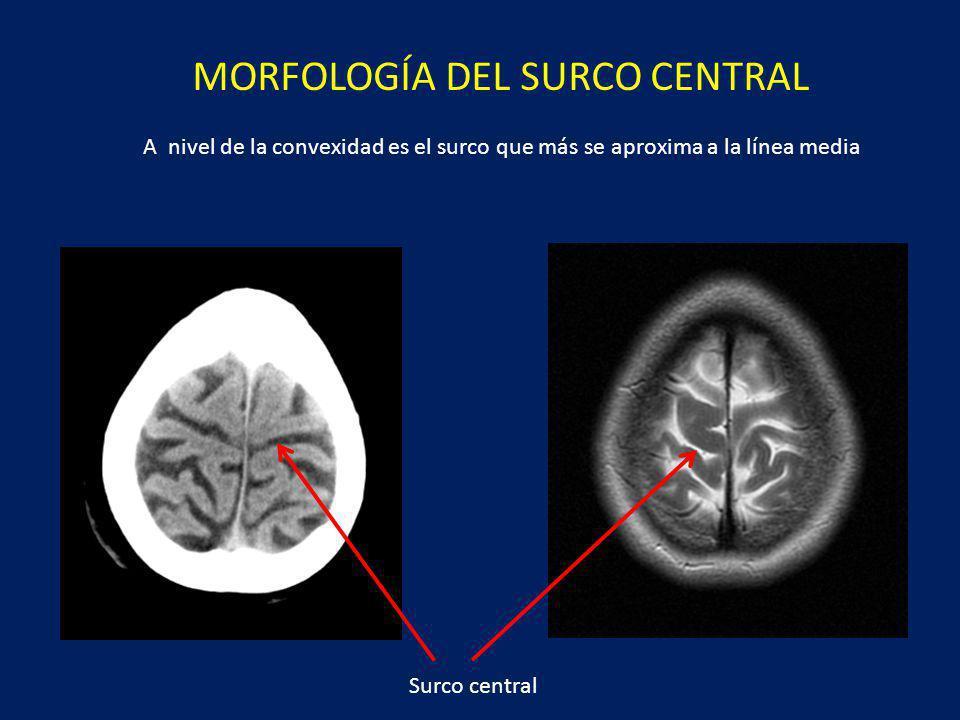 Morfología del surco central