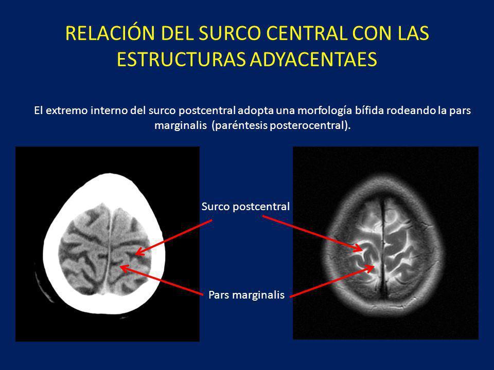 RELACIÓN DEL SURCO CENTRAL CON LAS ESTRUCTURAS ADYACENTAES