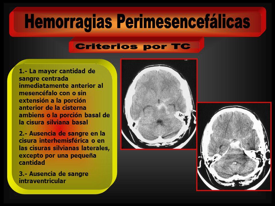 Hemorragias Perimesencefálicas