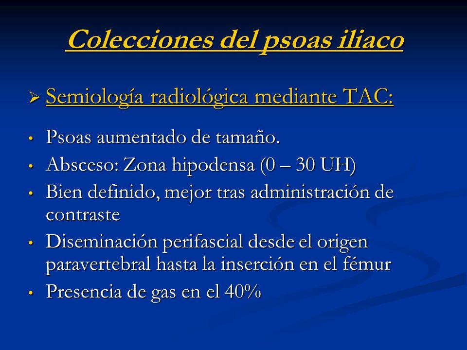 Colecciones del psoas iliaco