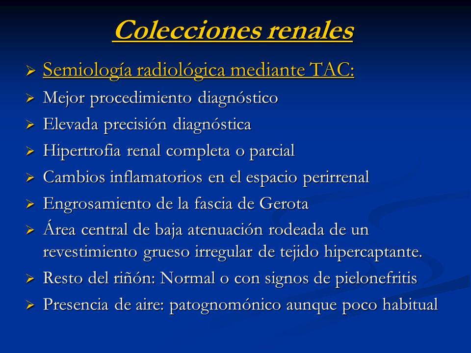 Colecciones renales Semiología radiológica mediante TAC: