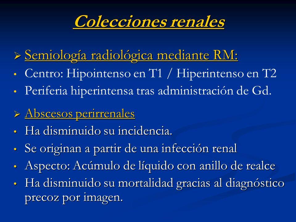 Colecciones renales Semiología radiológica mediante RM: