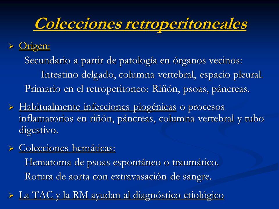Colecciones retroperitoneales