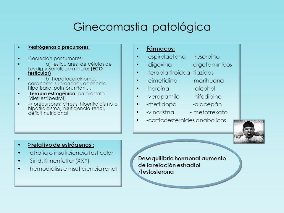 Ginecomastia patológica