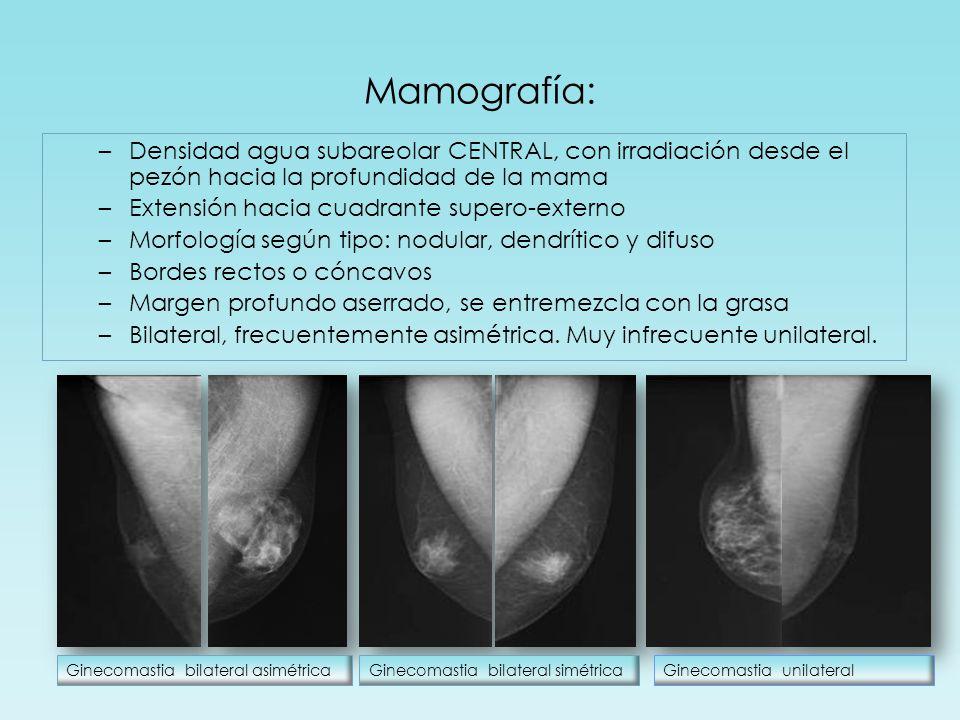 Mamografía: Densidad agua subareolar CENTRAL, con irradiación desde el pezón hacia la profundidad de la mama.