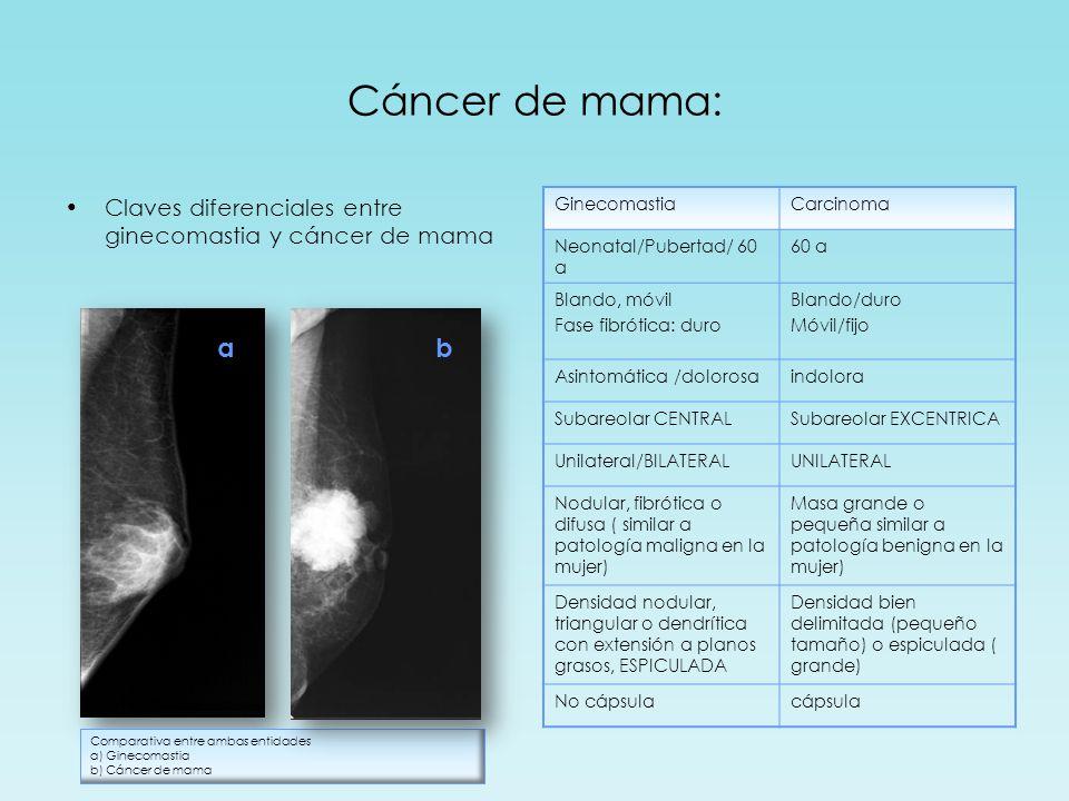 Cáncer de mama: Claves diferenciales entre ginecomastia y cáncer de mama. Ginecomastia. Carcinoma.