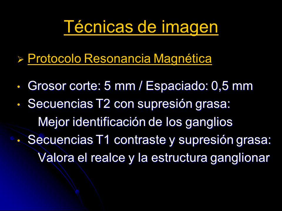Técnicas de imagen Protocolo Resonancia Magnética