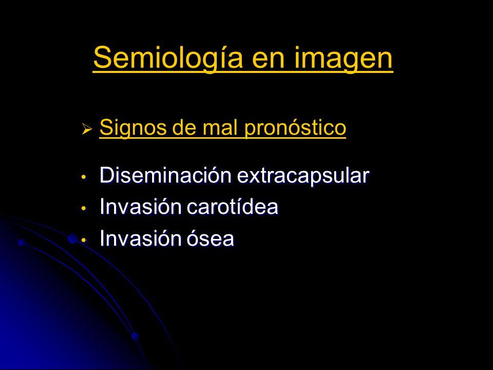 Semiología en imagen Signos de mal pronóstico