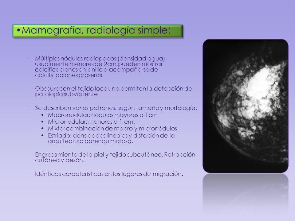 Mamografía, radiología simple: