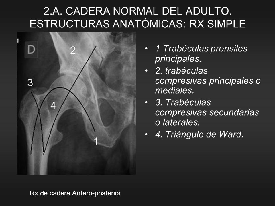 2.A. CADERA NORMAL DEL ADULTO. ESTRUCTURAS ANATÓMICAS: RX SIMPLE