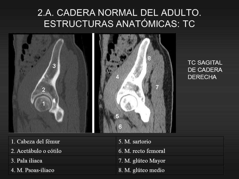 2.A. CADERA NORMAL DEL ADULTO. ESTRUCTURAS ANATÓMICAS: TC