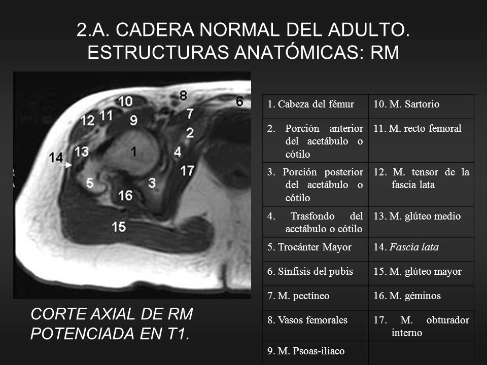 2.A. CADERA NORMAL DEL ADULTO. ESTRUCTURAS ANATÓMICAS: RM