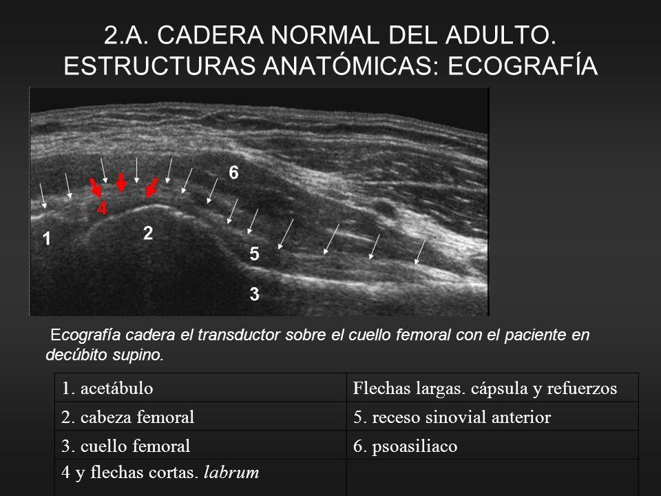 2.A. CADERA NORMAL DEL ADULTO. ESTRUCTURAS ANATÓMICAS: ECOGRAFÍA