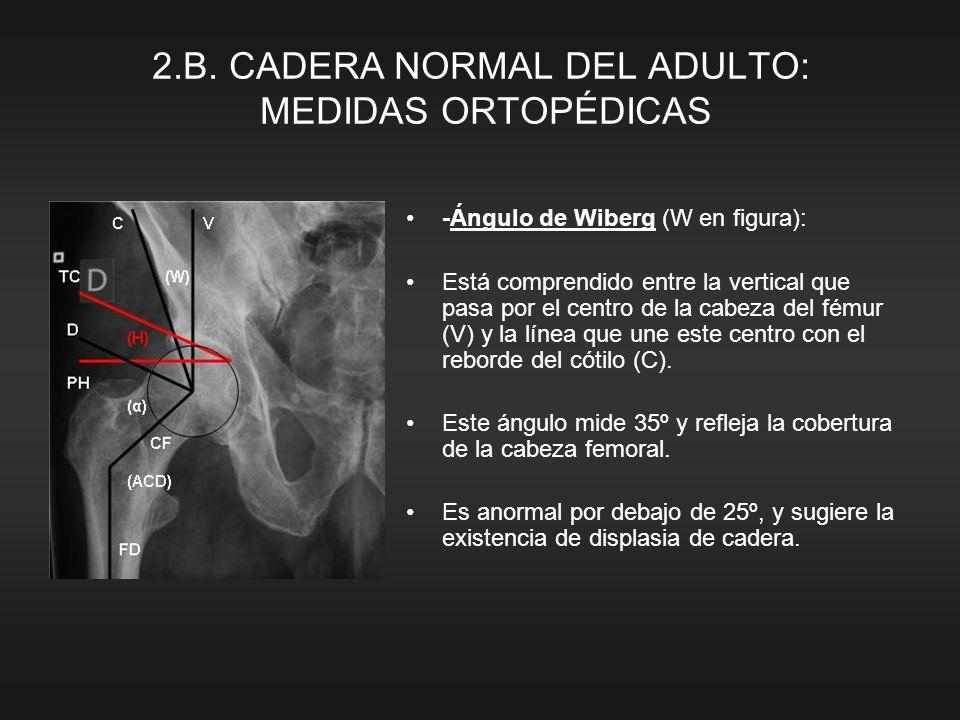 2.B. CADERA NORMAL DEL ADULTO: MEDIDAS ORTOPÉDICAS