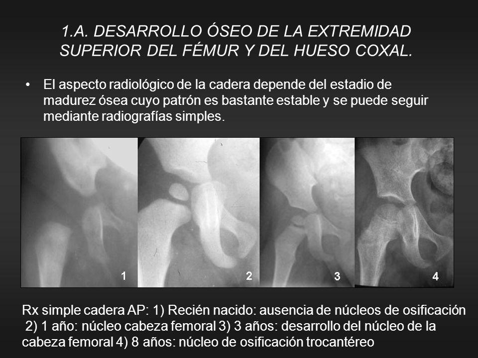 1.A. DESARROLLO ÓSEO DE LA EXTREMIDAD SUPERIOR DEL FÉMUR Y DEL HUESO COXAL.