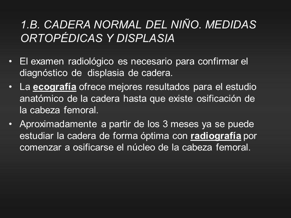 1.B. CADERA NORMAL DEL NIÑO. MEDIDAS ORTOPÉDICAS Y DISPLASIA