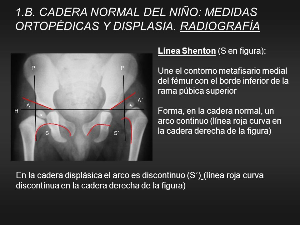 1. B. CADERA NORMAL DEL NIÑO: MEDIDAS ORTOPÉDICAS Y DISPLASIA