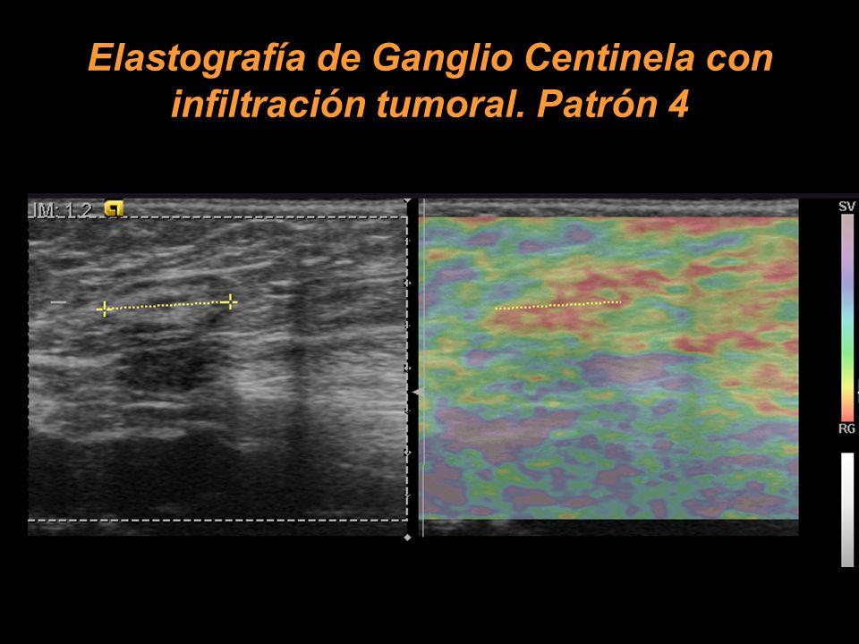 Elastografía de Ganglio Centinela con infiltración tumoral. Patrón 4