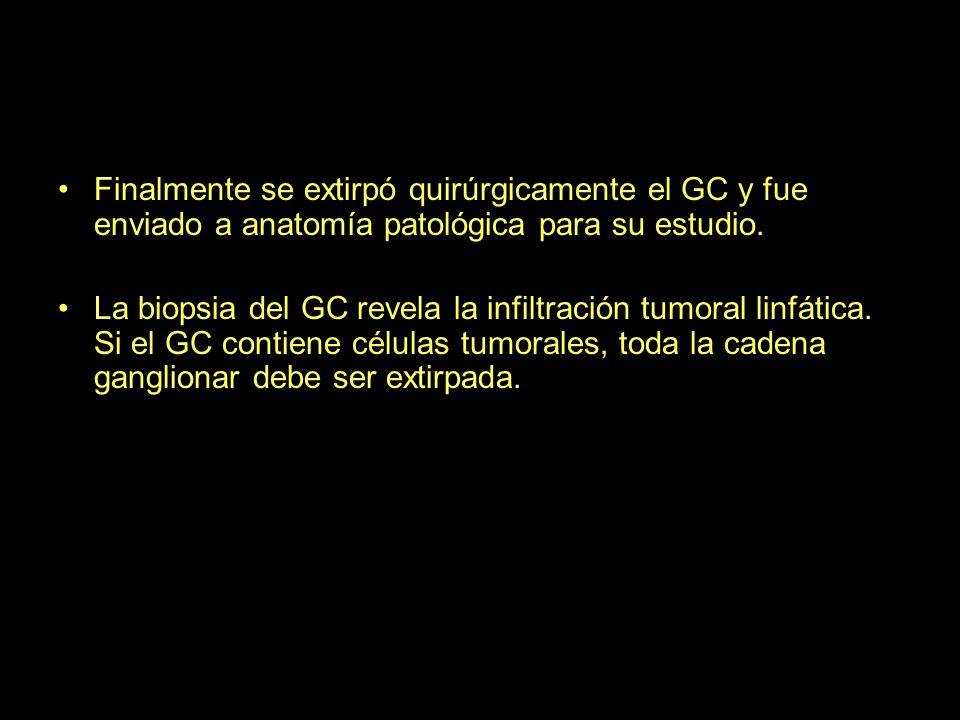 Finalmente se extirpó quirúrgicamente el GC y fue enviado a anatomía patológica para su estudio.