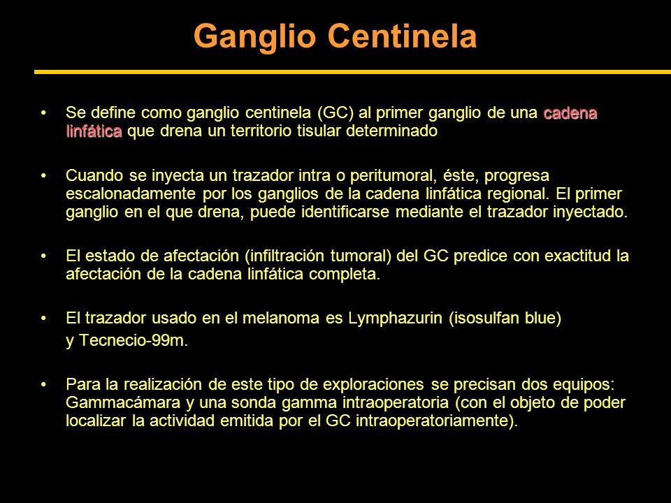 Ganglio Centinela Se define como ganglio centinela (GC) al primer ganglio de una cadena linfática que drena un territorio tisular determinado.