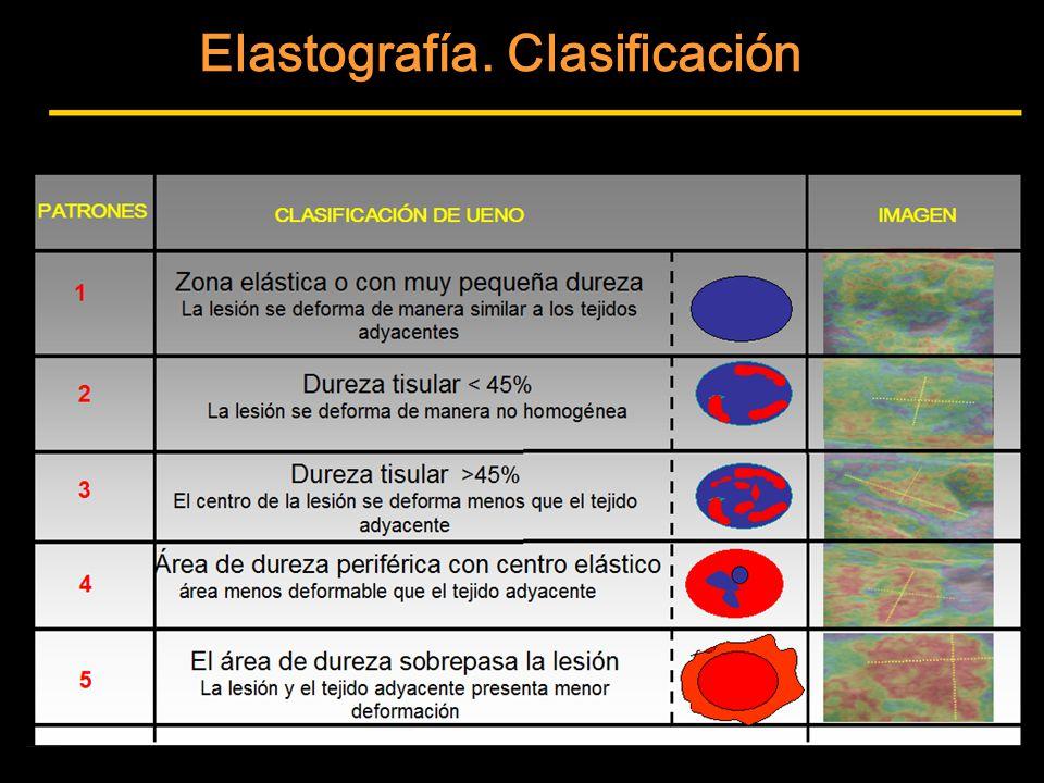 Elastografía. Clasificación