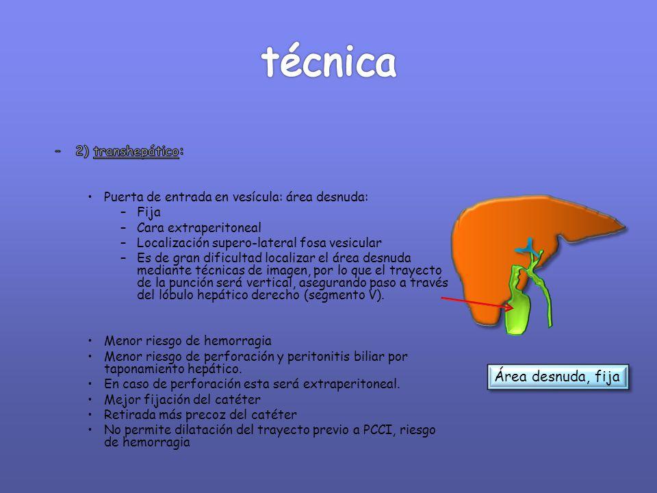 técnica Área desnuda, fija 2) transhepático: