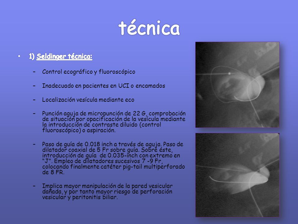 técnica 1) Seldinger técnica: Control ecográfico y fluoroscópico
