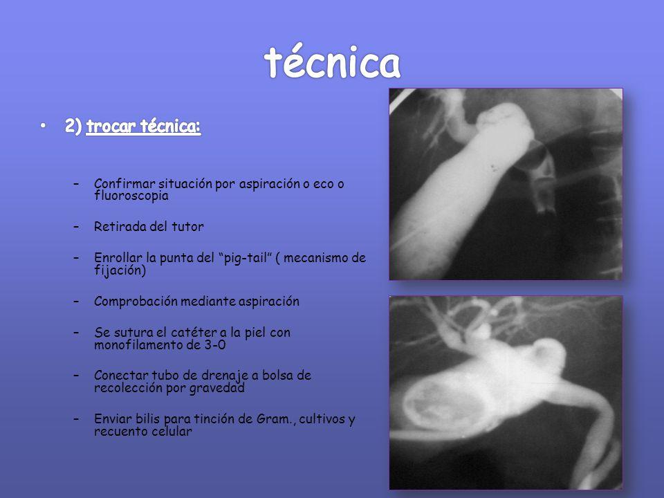 técnica 2) trocar técnica: