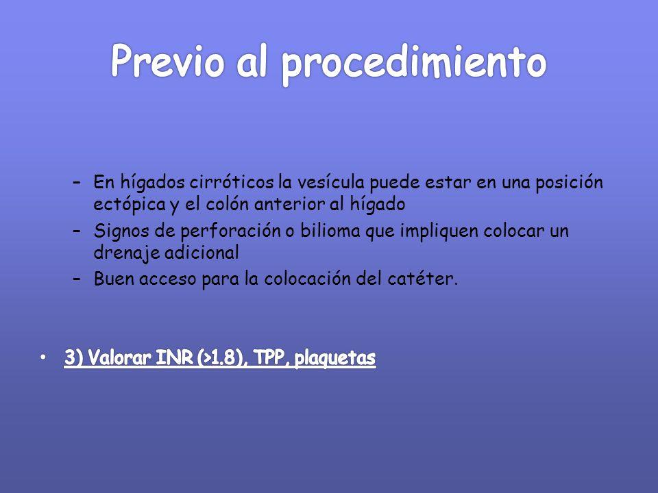 Previo al procedimiento