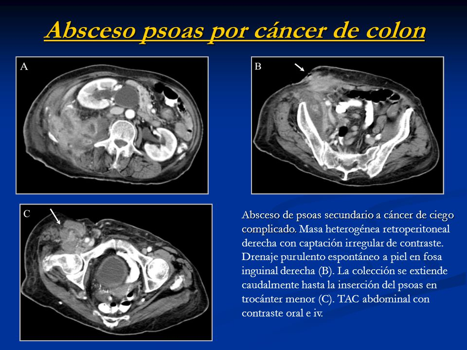 Absceso psoas por cáncer de colon