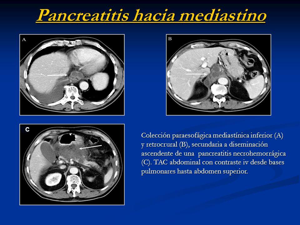 Pancreatitis hacia mediastino
