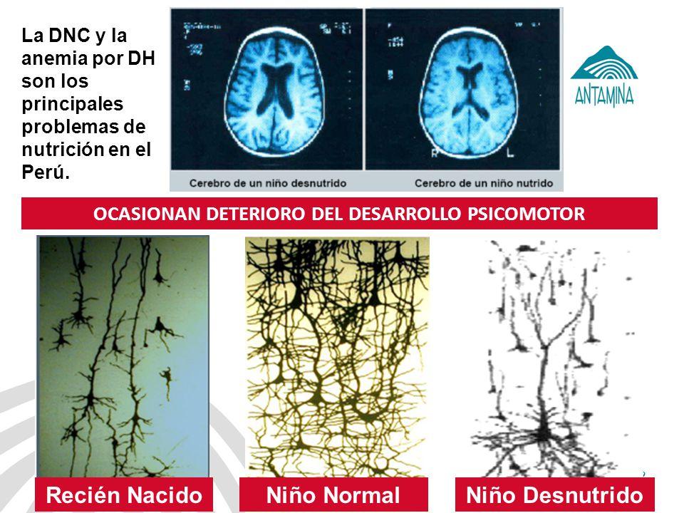 OCASIONAN DETERIORO DEL DESARROLLO PSICOMOTOR