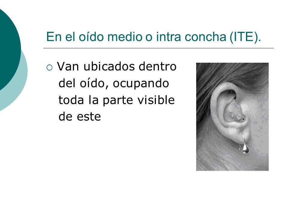 En el oído medio o intra concha (ITE).