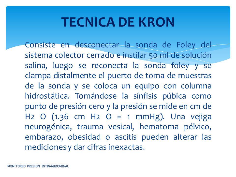 TECNICA DE KRON
