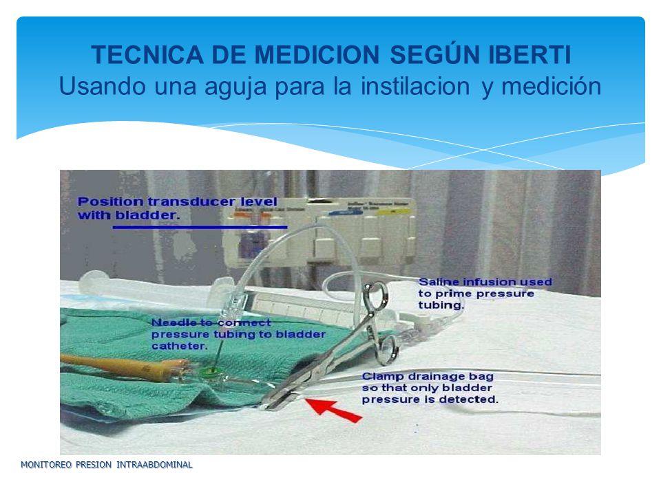 TECNICA DE MEDICION SEGÚN IBERTI Usando una aguja para la instilacion y medición