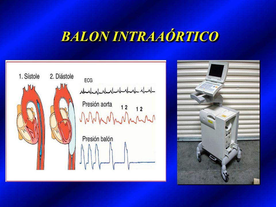 BALON INTRAAÓRTICO