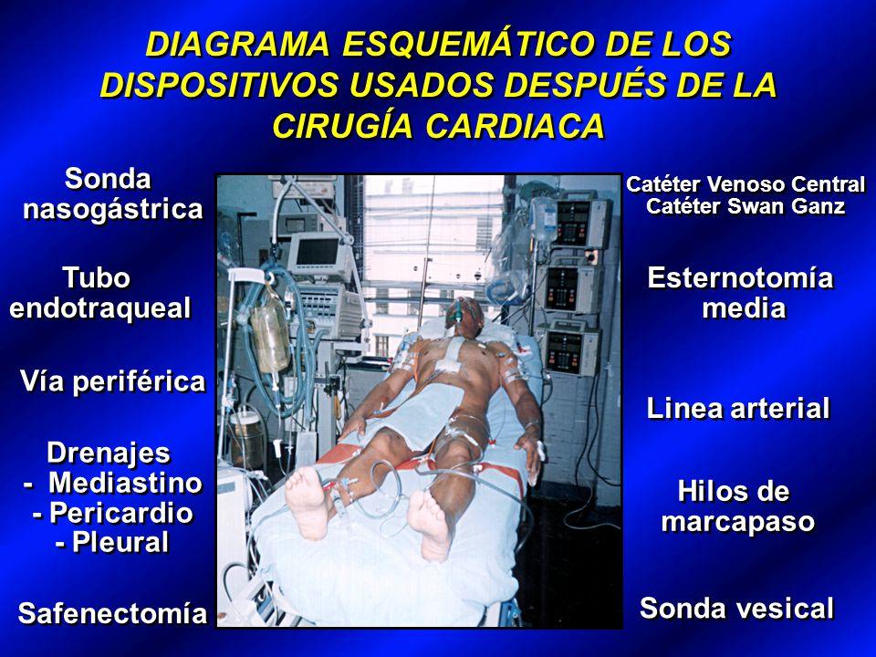 DIAGRAMA ESQUEMÁTICO DE LOS DISPOSITIVOS USADOS DESPUÉS DE LA CIRUGÍA CARDIACA