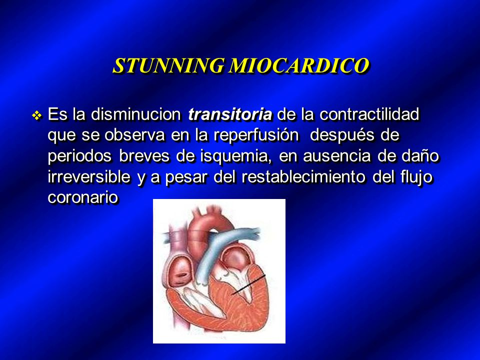 STUNNING MIOCARDICO