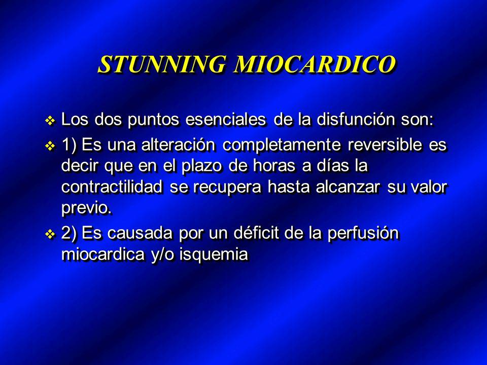 STUNNING MIOCARDICO Los dos puntos esenciales de la disfunción son:
