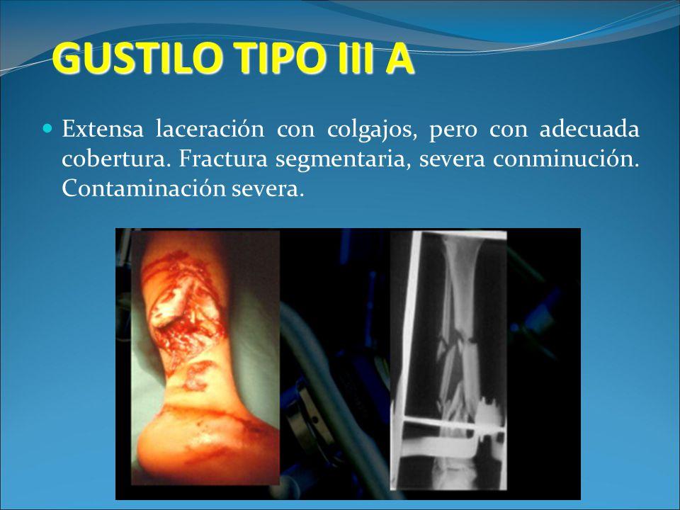 GUSTILO TIPO III A Extensa laceración con colgajos, pero con adecuada cobertura.