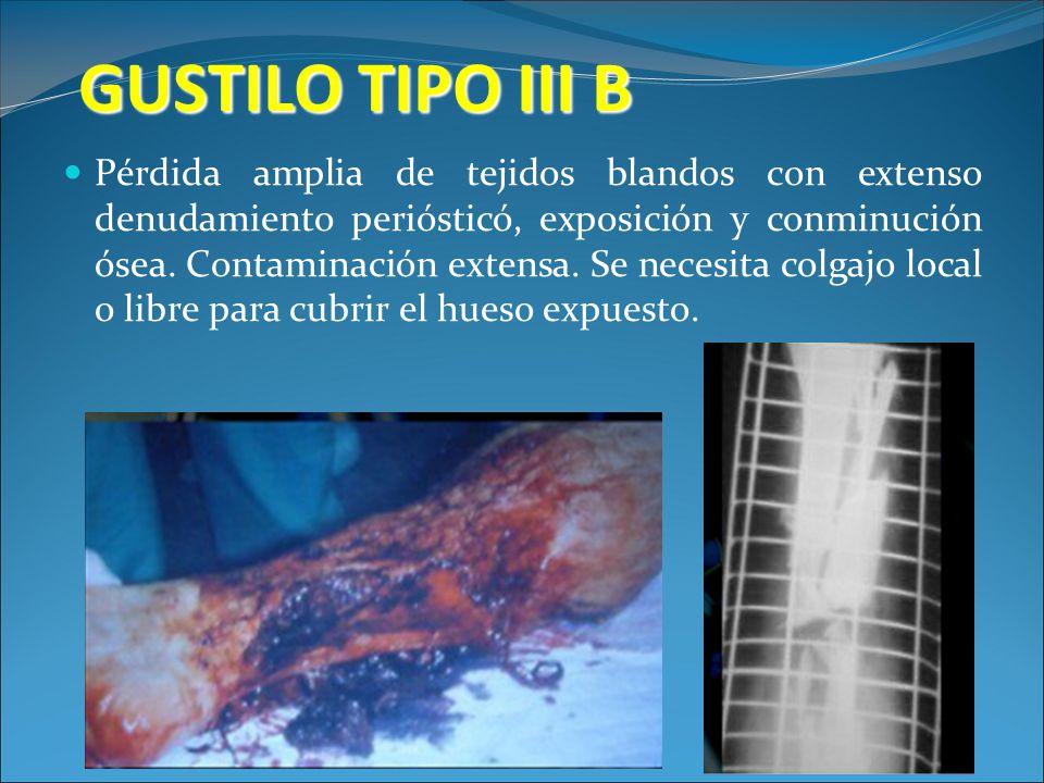 GUSTILO TIPO III B