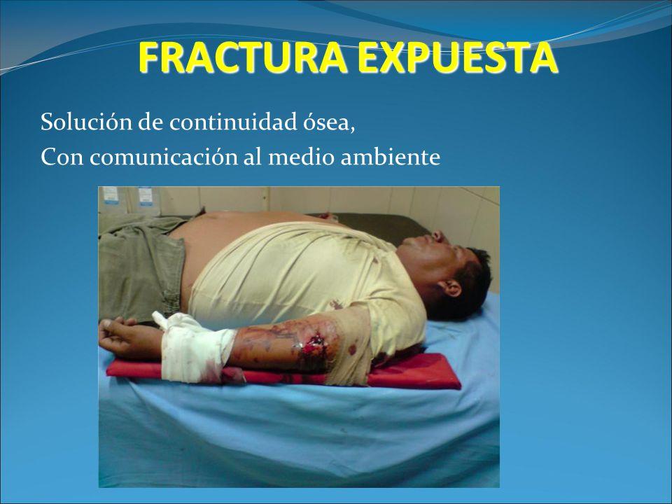FRACTURA EXPUESTA Solución de continuidad ósea,