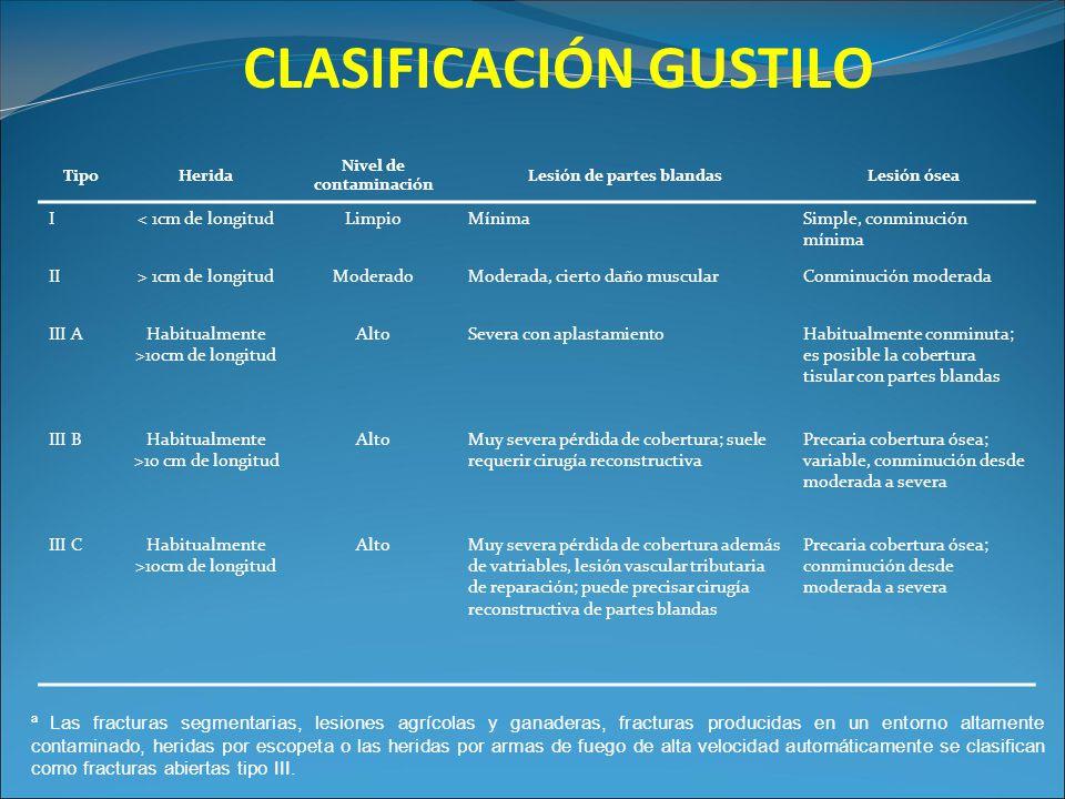CLASIFICACIÓN GUSTILO