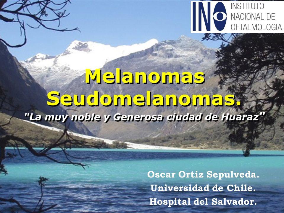 Melanomas Seudomelanomas. La muy noble y Generosa ciudad de Huaraz