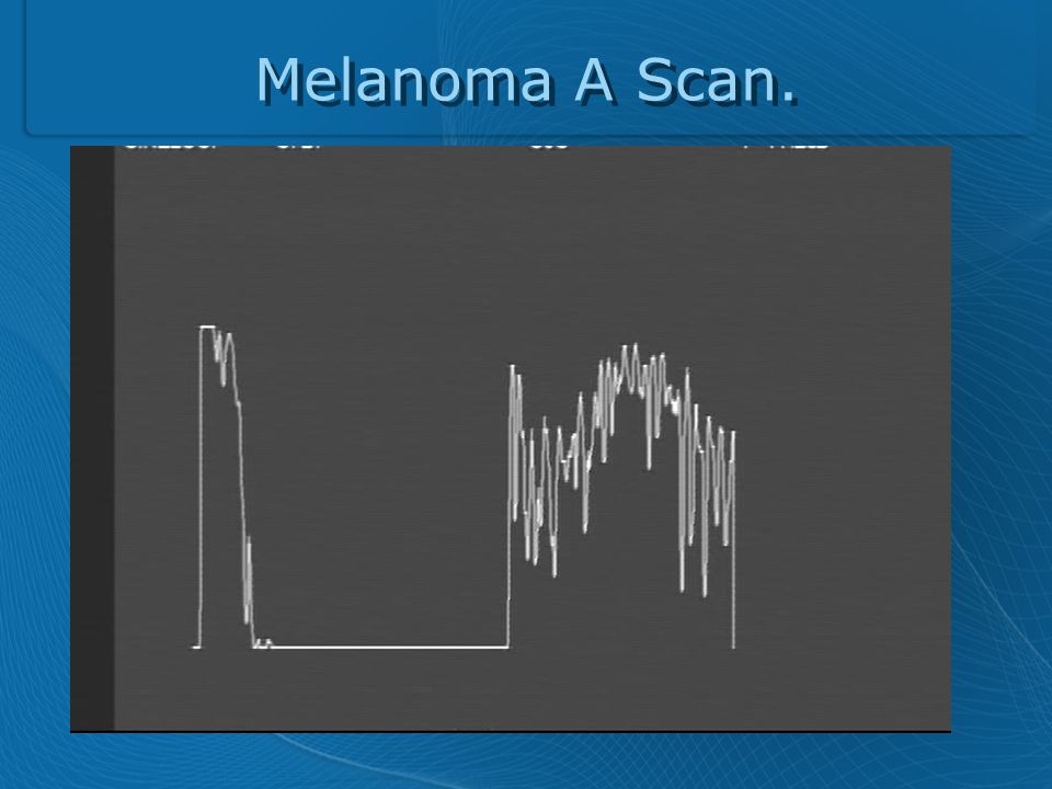 Melanoma A Scan.