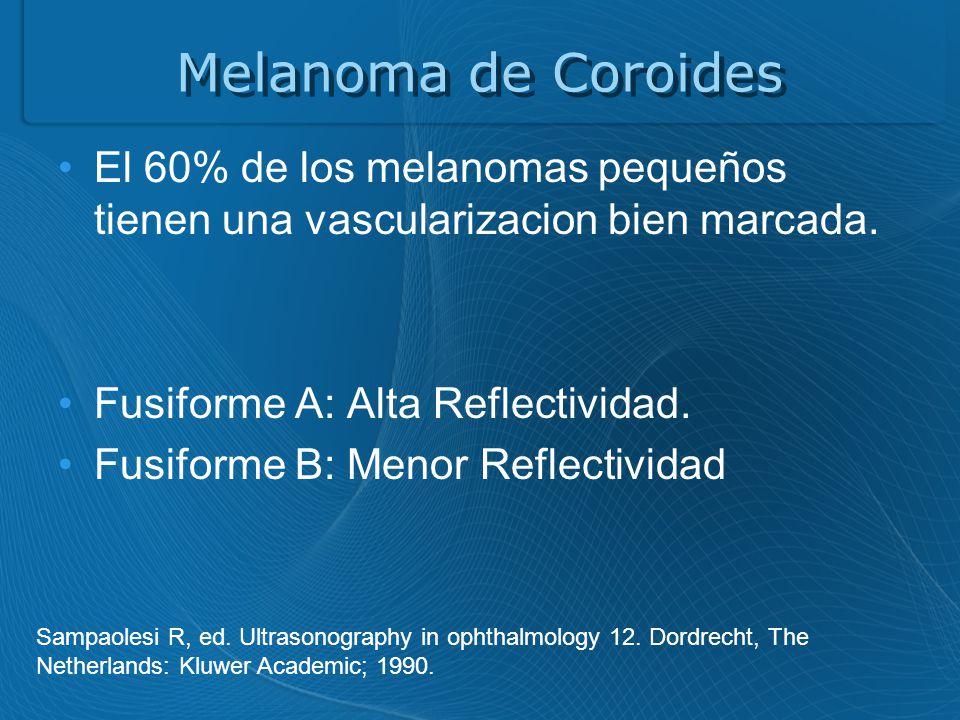 Melanoma de Coroides El 60% de los melanomas pequeños tienen una vascularizacion bien marcada. Fusiforme A: Alta Reflectividad.