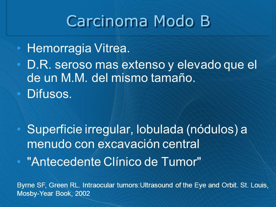 Carcinoma Modo B Hemorragia Vitrea.